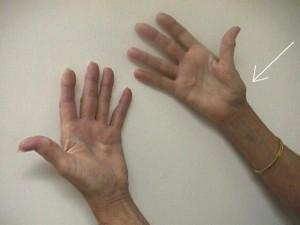 slijtage handen